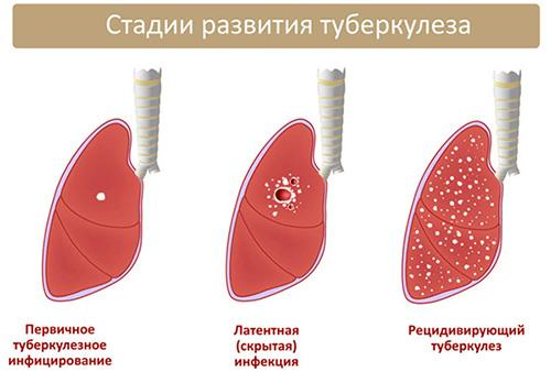 рисунок лёгких человека на разных стадиях туберкулёза