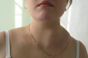 увеличенный лимфоузел на шее при чуме