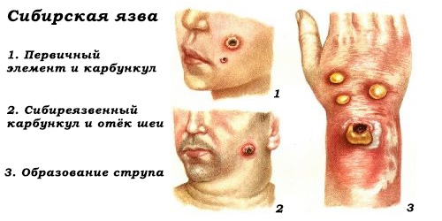 рисунок клинических проявлений сибирской язвы