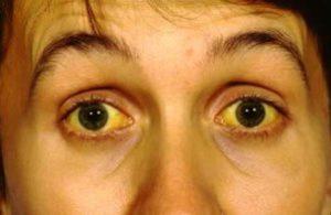 жёлтые склеры глаз у человека, больного лептоспирозом