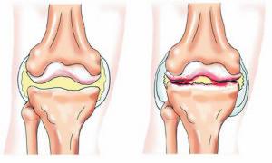 рисунок здорового сустава и поражённого артритом