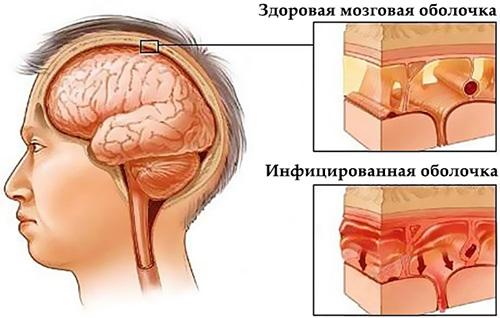 рисунок воспаления мозговых оболочек при серозном менингите