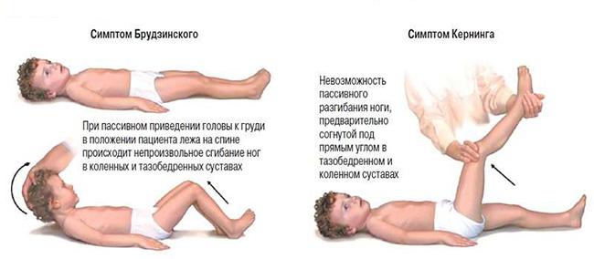 Рисунок симптомов Брудзинского и Кернига