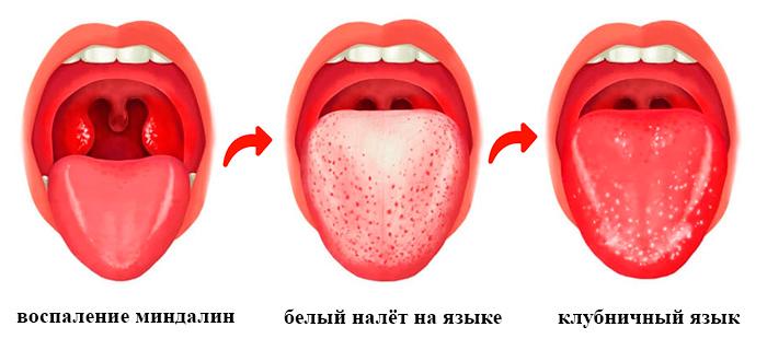 миндалины и язык при скарлатине картинка